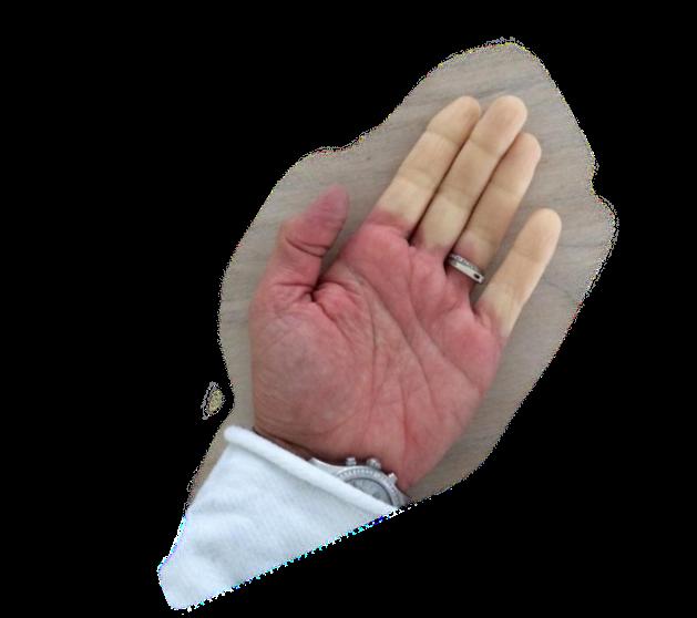 Kolde hænder - en træg skjoldbruskkirtel