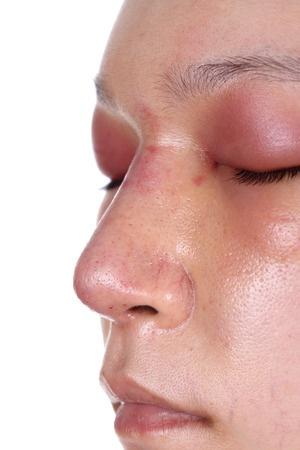 Øjenproblemer forbundet med stofskiftet
