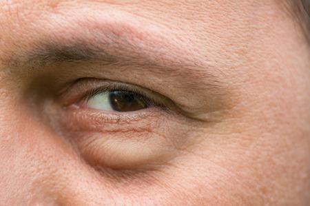 væskeansamling i øjet