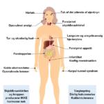 16 tegn på stofskifteproblemer