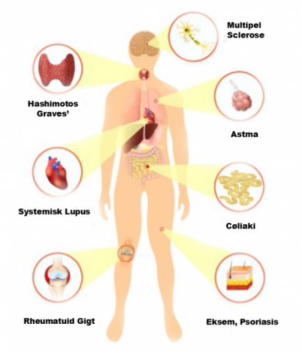 Er et lavt D Vitamin niveau forbundet med øgede antistoffer