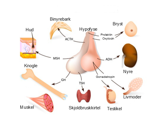 Hypofysetumor