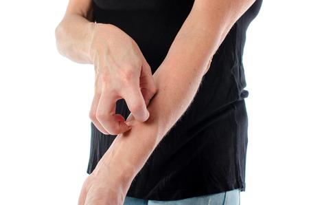 bindevævssygdom i huden