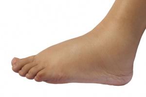 Din krop- og advarslerne om stofskifteproblemer